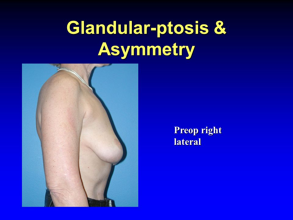 Glandular-ptosis & Asymmetry Preop right lateral