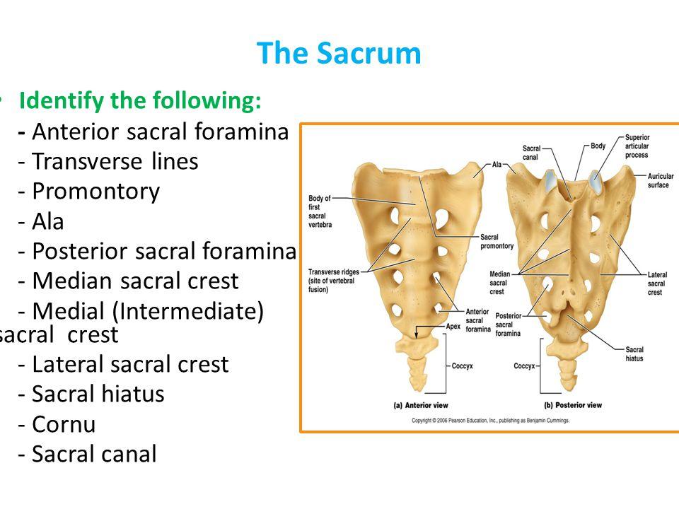 The Sacrum Identify the following: - Anterior sacral foramina - Transverse lines - Promontory - Ala - Posterior sacral foramina - Median sacral crest