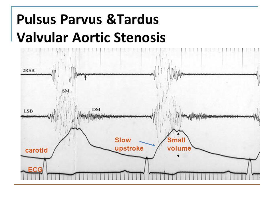 Pulsus Parvus &Tardus Valvular Aortic Stenosis Slow upstroke carotid ECG Small volume