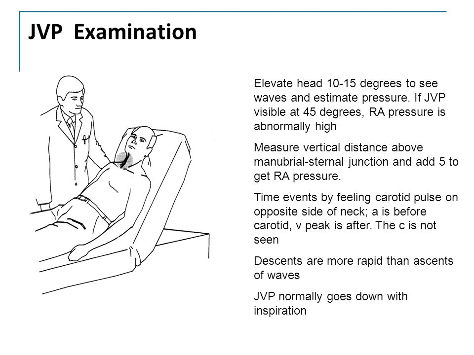 JVP Examination Elevate head 10-15 degrees to see waves and estimate pressure. If JVP visible at 45 degrees, RA pressure is abnormally high Measure ve