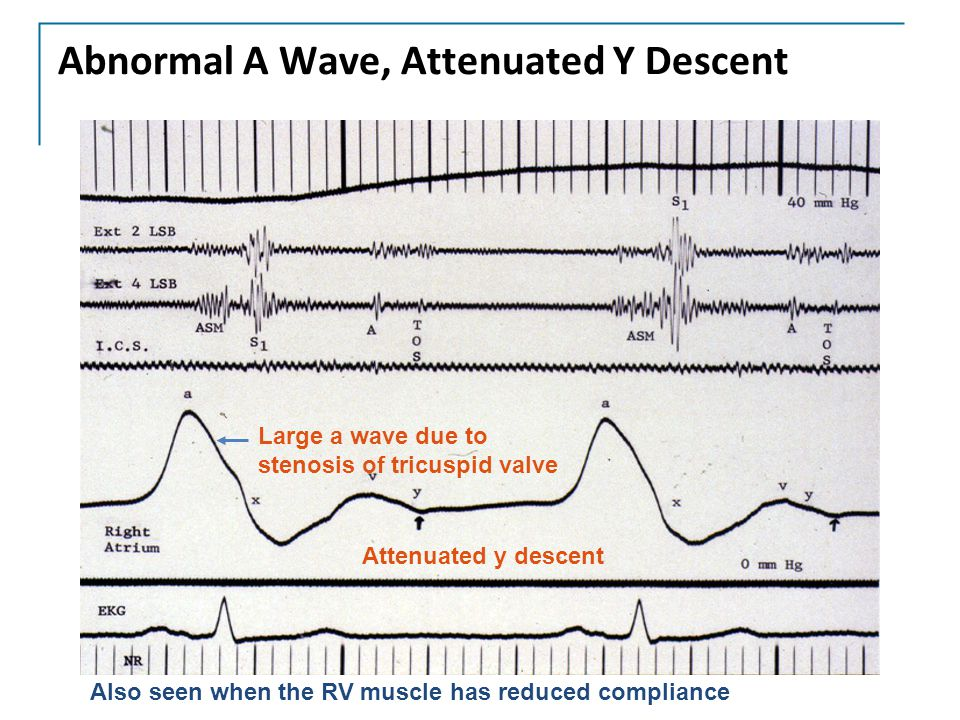 Abnormal A Wave, Attenuated Y Descent Also seen when the RV muscle has reduced compliance Large a wave due to stenosis of tricuspid valve Attenuated y