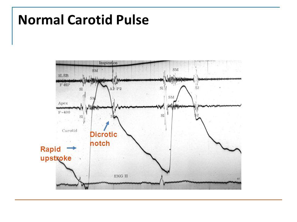 Normal Carotid Pulse Rapid upstroke Dicrotic notch