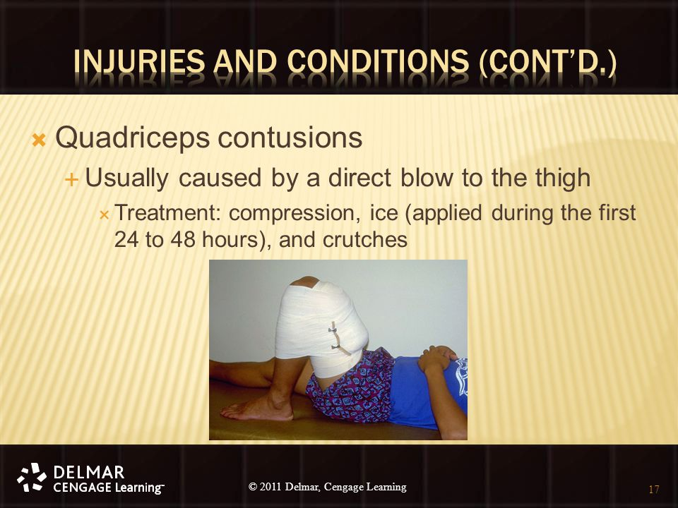 © 2010 Delmar, Cengage Learning 17 © 2011 Delmar, Cengage Learning  Quadriceps contusions  Usually caused by a direct blow to the thigh  Treatment: