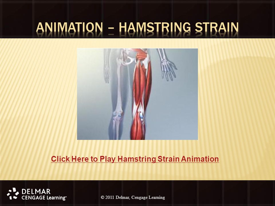 © 2010 Delmar, Cengage Learning 20 © 2011 Delmar, Cengage Learning Click Here to Play Hamstring Strain Animation
