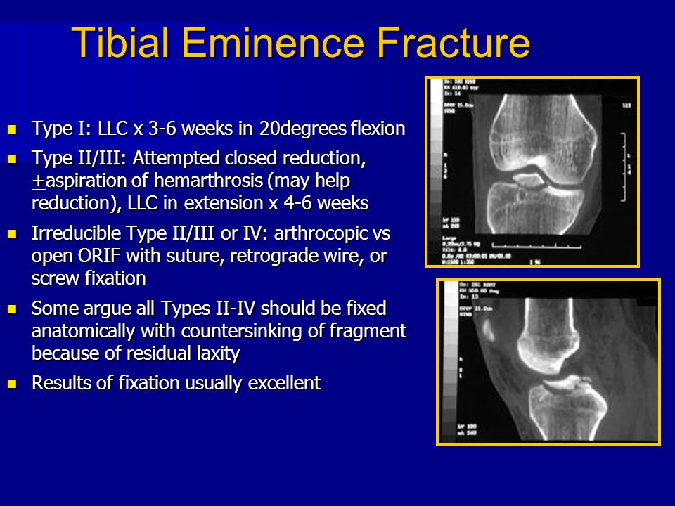 Tibial Eminence Fracture Type I: LLC x 3-6 weeks in 20degrees flexion Type I: LLC x 3-6 weeks in 20degrees flexion Type II/III: Attempted closed reduc