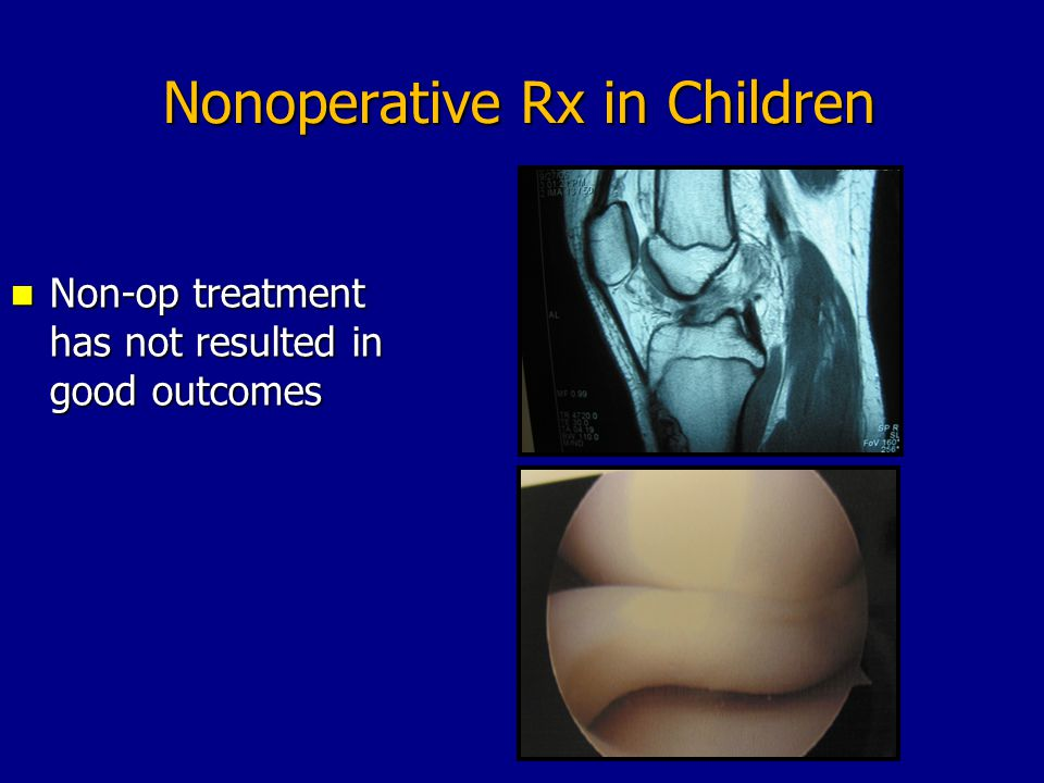 Nonoperative Rx in Children Non-op treatment has not resulted in good outcomes Non-op treatment has not resulted in good outcomes