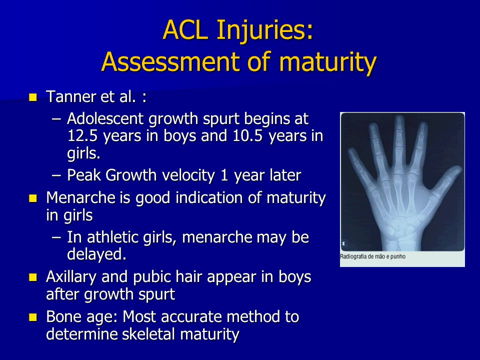 ACL Injuries: Assessment of maturity Tanner et al. : Tanner et al. : –Adolescent growth spurt begins at 12.5 years in boys and 10.5 years in girls. –P