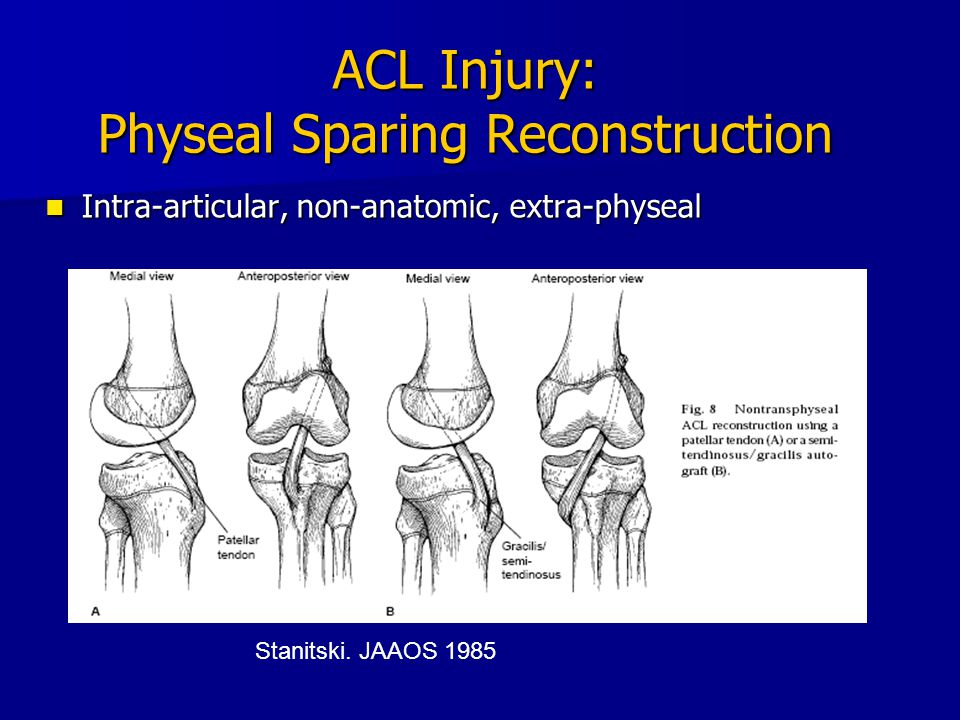 ACL Injury: Physeal Sparing Reconstruction Intra-articular, non-anatomic, extra-physeal Intra-articular, non-anatomic, extra-physeal Stanitski. JAAOS