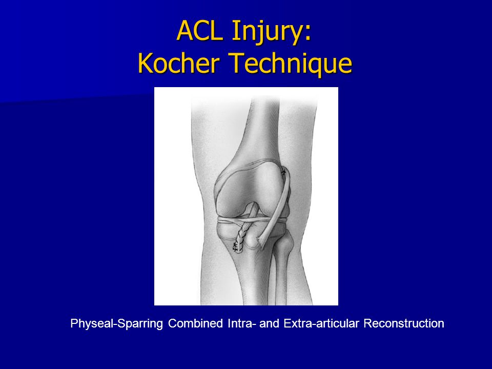 ACL Injury: Kocher Technique Physeal-Sparring Combined Intra- and Extra-articular Reconstruction