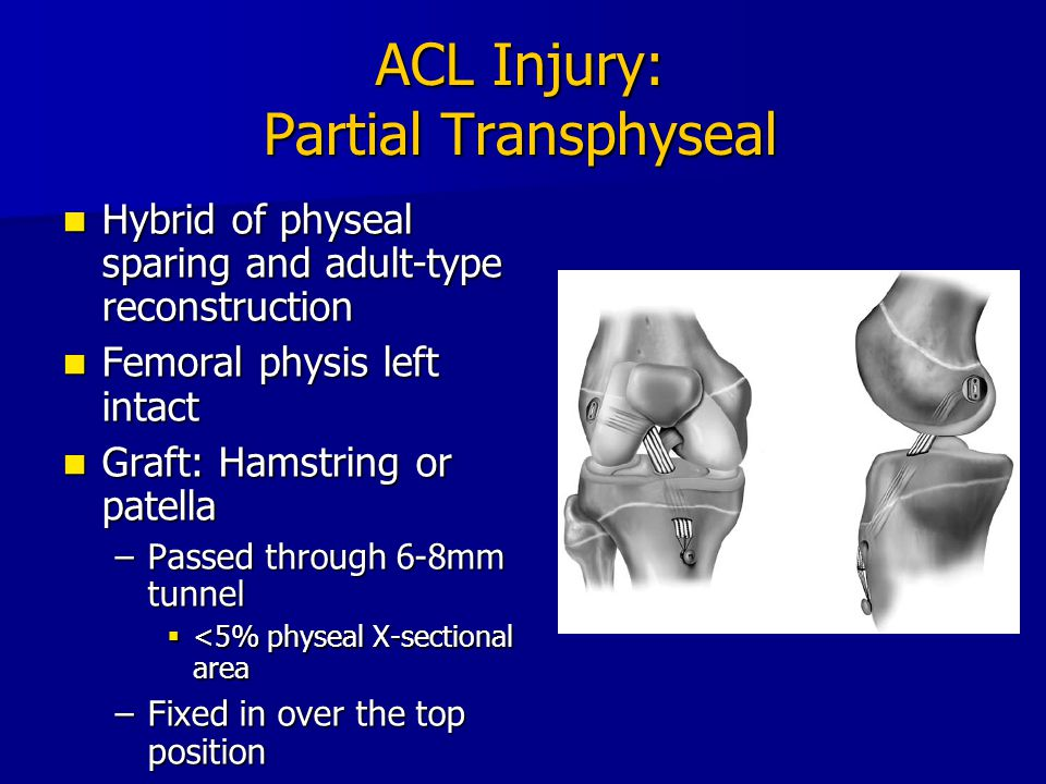 ACL Injury: Partial Transphyseal Hybrid of physeal sparing and adult-type reconstruction Hybrid of physeal sparing and adult-type reconstruction Femor