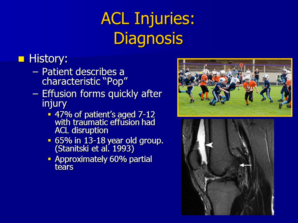 "ACL Injuries: Diagnosis History: History: –Patient describes a characteristic ""Pop"" –Effusion forms quickly after injury  47% of patient's aged 7-12"
