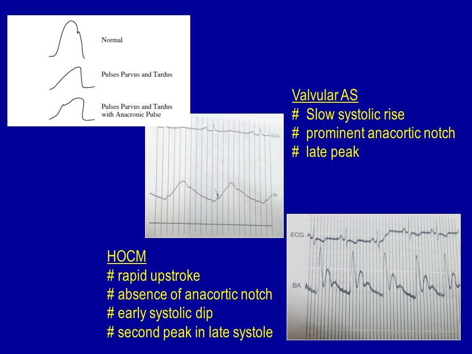 Supra valvular AS - pulse disparity (Coanda effect) - systolic pressure in the right arm > left arm.