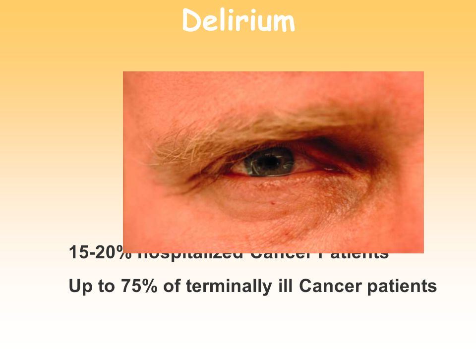Delirium 15-20% hospitalized Cancer Patients Up to 75% of terminally ill Cancer patients