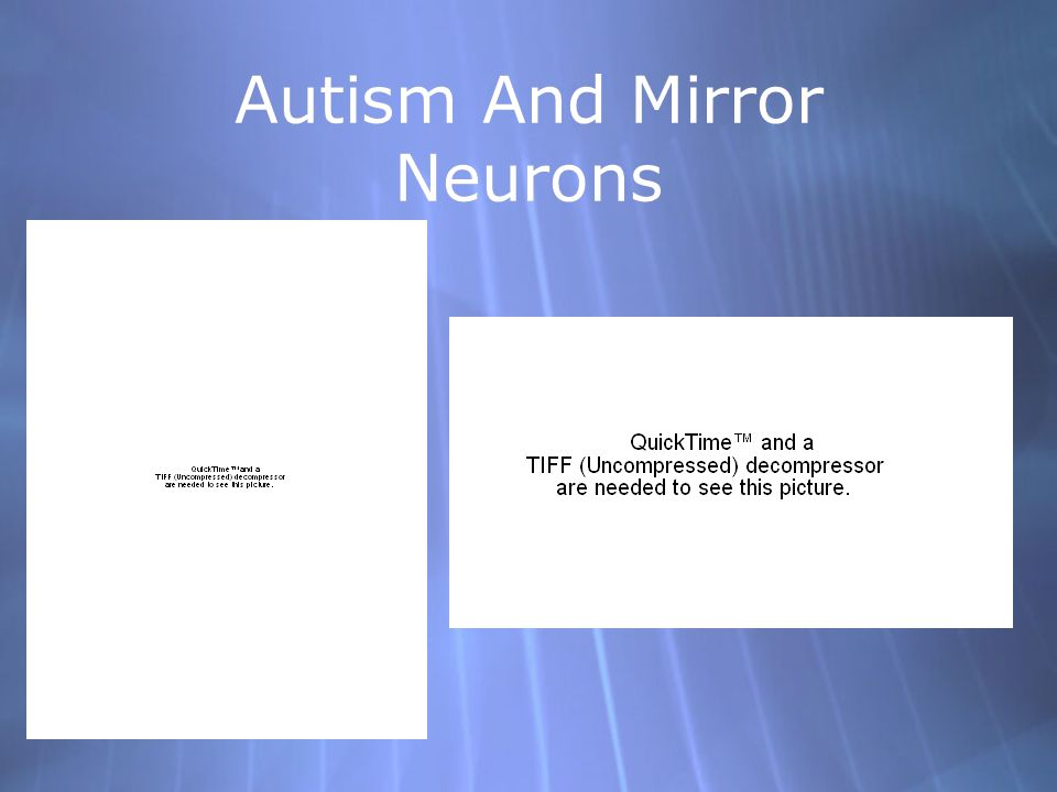 Autism Spectrum Disorder (ASD) Affected people exhibit a wide range in the magnitude in their symptoms These patients show deficits in: Communication and Socialization Theory of Mind Empathy Is a dysfunctional mirror neuron system responsible for this phenotype.