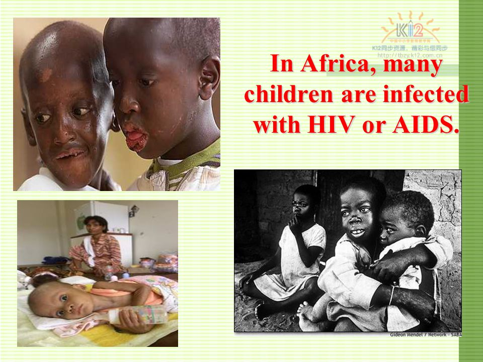 terrible virus Acquired immune deficiency syndrome (AIDS) has killed more than 25 million people since the first case was reported in 1981, making it one of the most destructive diseases in history.