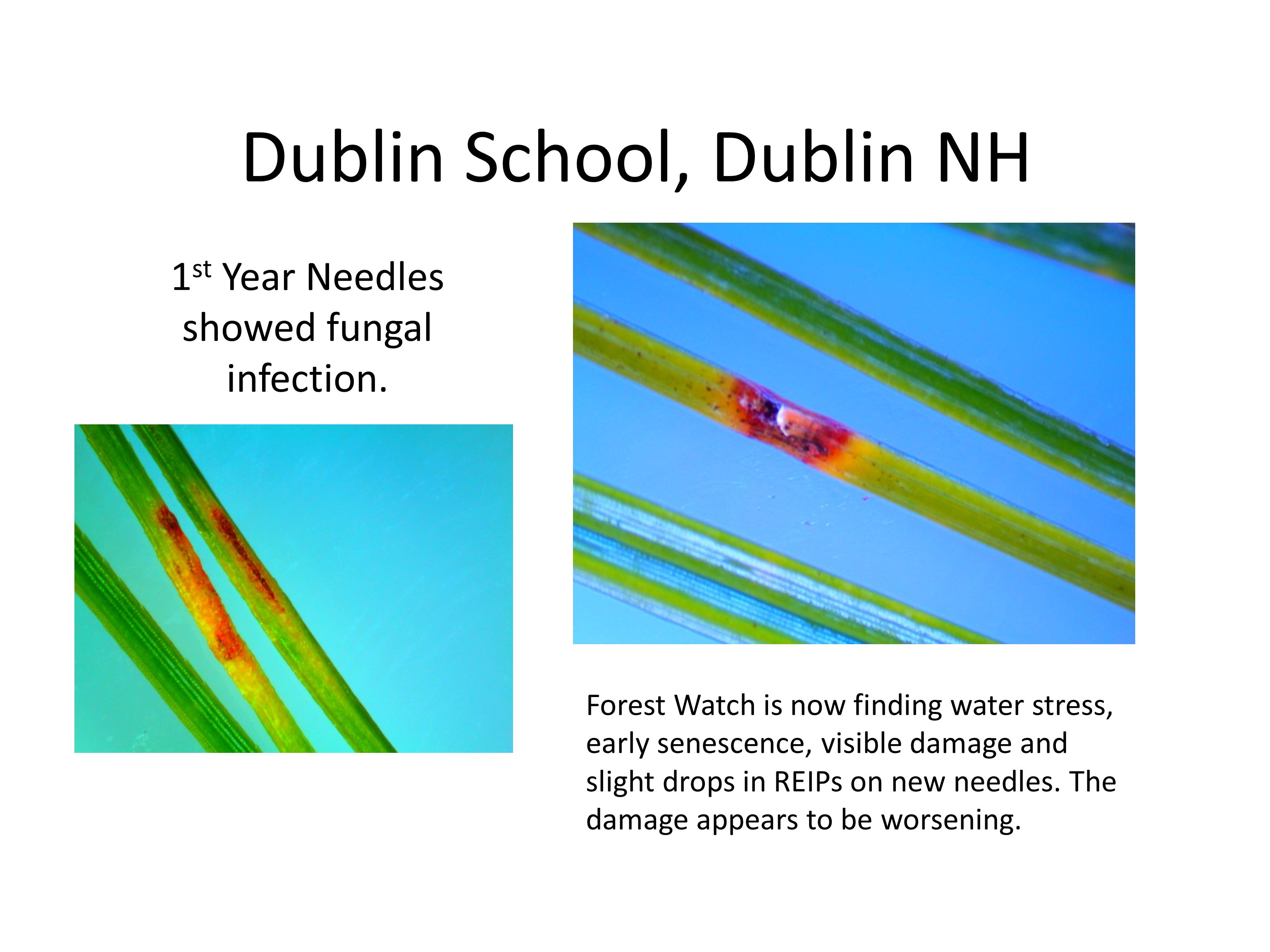Dublin School, Dublin NH 1 st Year Needles showed fungal infection.