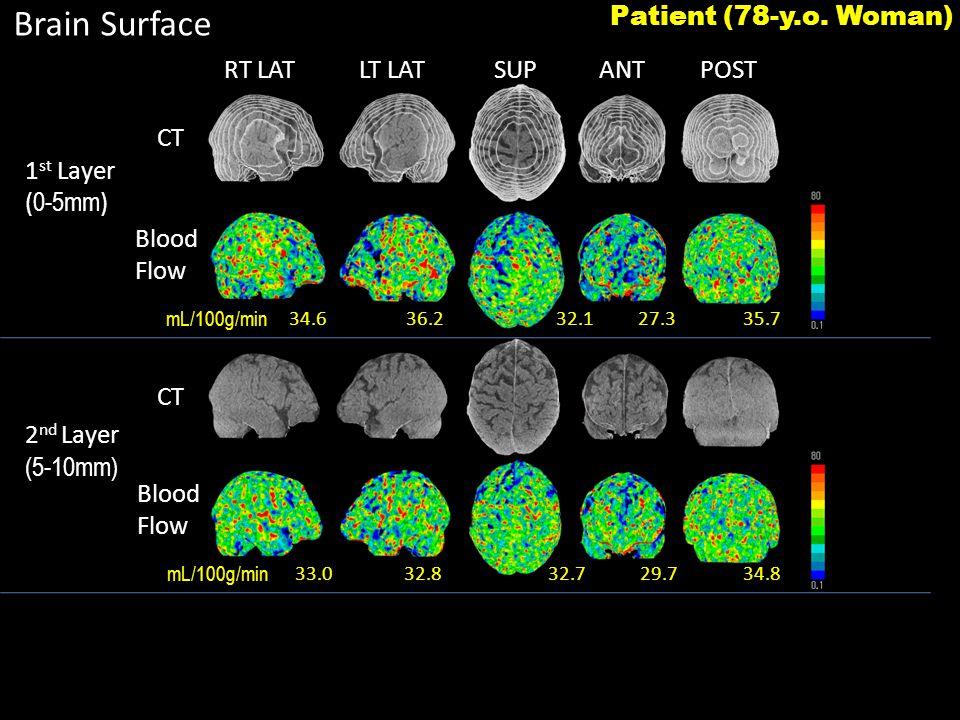 RT LATLT LATSUPANTPOST Brain Surface 34.636.2 27.335.732.1 33.032.8 29.734.832.7 1 st Layer ( 0-5mm ) 2 nd Layer (5-10mm) CT Blood Flow Blood Flow Patient (78-y.o.