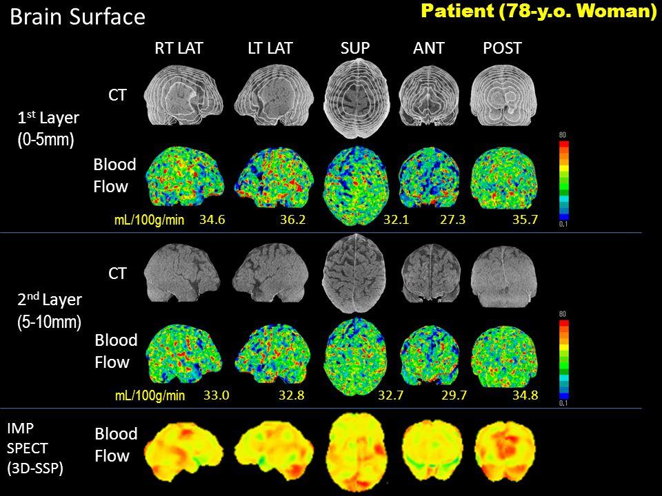 RT LATLT LATSUPANTPOST Brain Surface 34.636.2 27.335.732.1 33.032.8 29.734.832.7 1 st Layer ( 0-5mm ) 2 nd Layer (5-10mm) IMP SPECT (3D-SSP) CT Blood Flow Blood Flow Blood Flow Patient (78-y.o.
