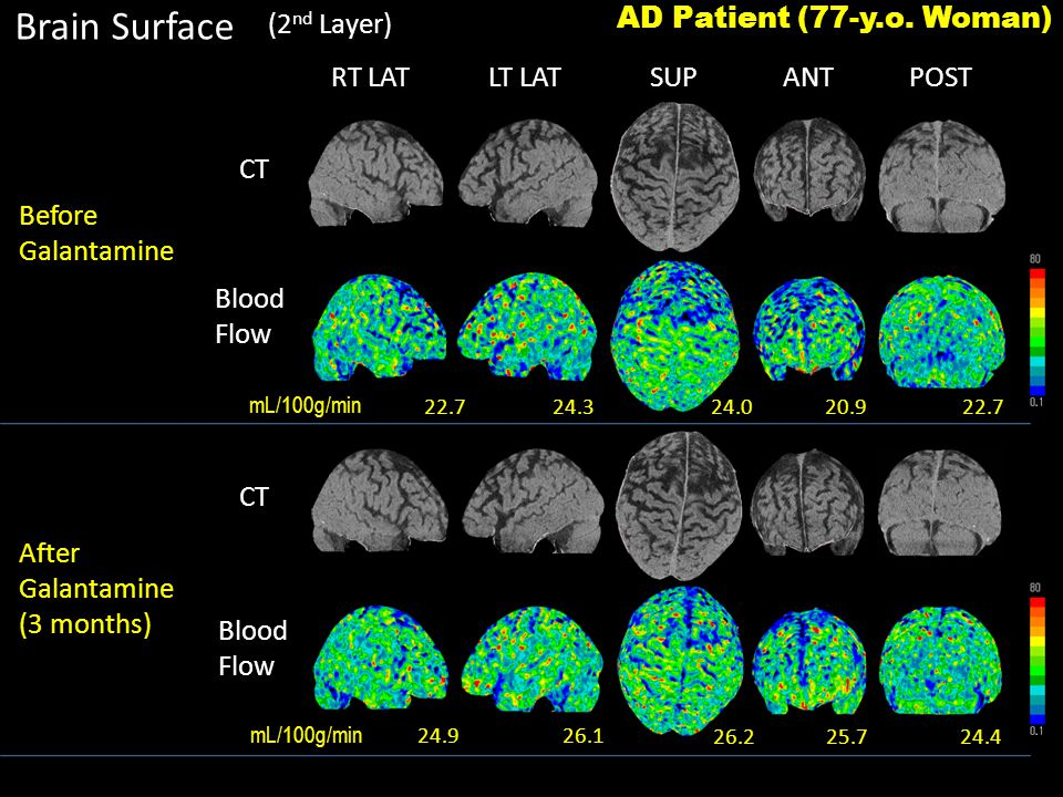 RT LATLT LATSUPANTPOST Brain Surface Before Galantamine CT Blood Flow Blood Flow AD Patient (77-y.o.