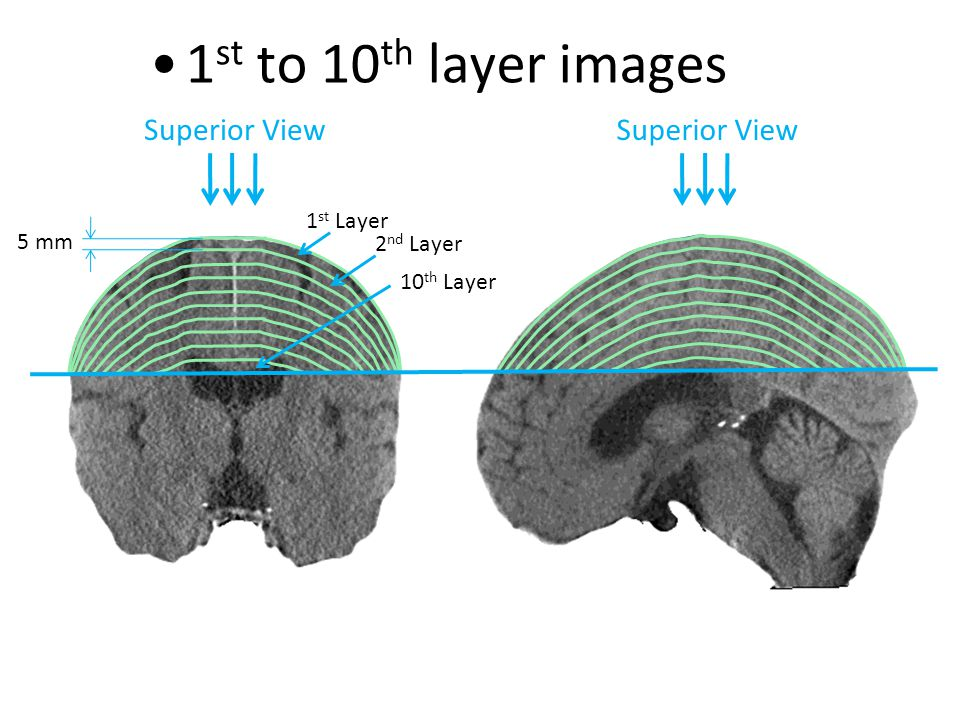 1 st Layer Superior View 1 st to 10 th layer images 2 nd Layer 10 th Layer 5 mm Superior View