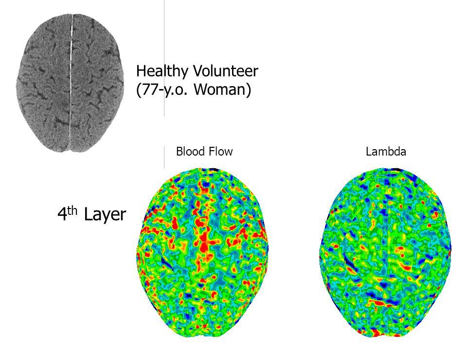 Blood Flow Lambda 4 th Layer Healthy Volunteer (77-y.o. Woman)