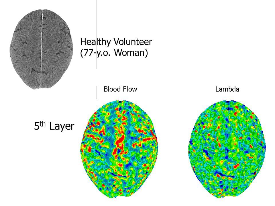 Blood Flow Lambda 5 th Layer Healthy Volunteer (77-y.o. Woman)