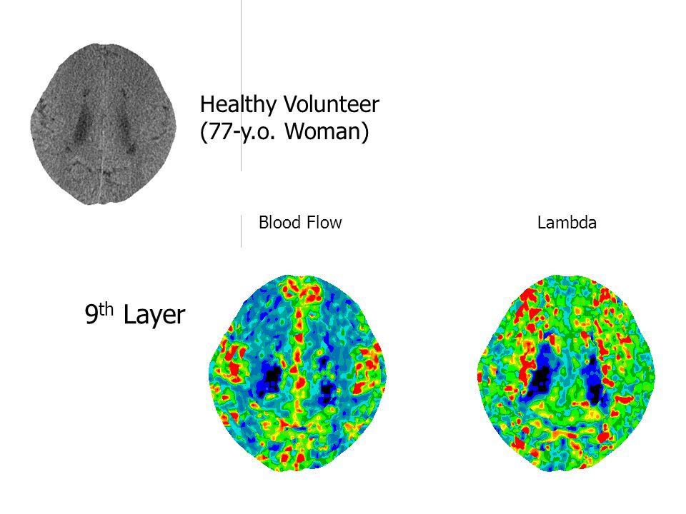 Blood Flow Lambda 9 th Layer Healthy Volunteer (77-y.o. Woman)