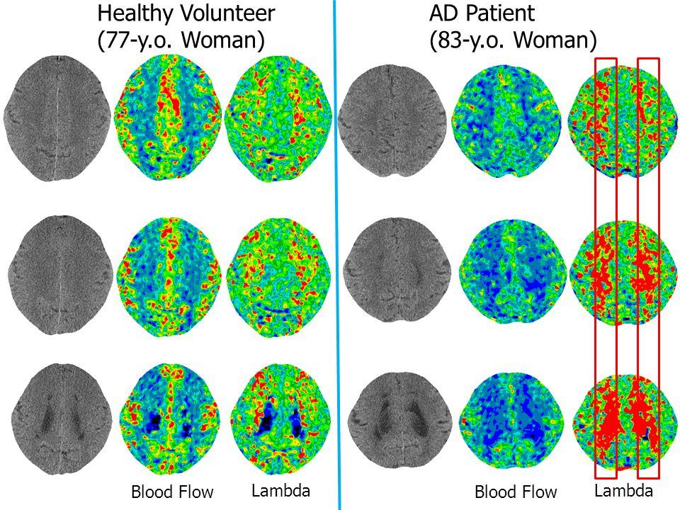 Healthy Volunteer (77-y.o. Woman) AD Patient (83-y.o. Woman) Blood Flow Lambda Blood Flow Lambda