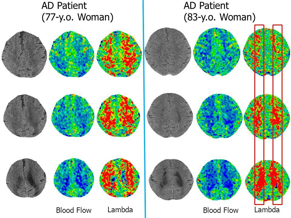 AD Patient (77-y.o. Woman) AD Patient (83-y.o. Woman) Blood Flow Lambda Blood Flow Lambda