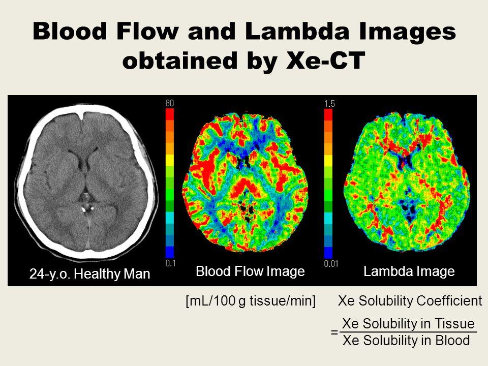 Blood Flow Lambda 10 th Layer Healthy Volunteer (77-y.o. Woman)
