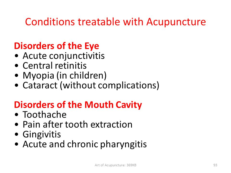 Art of Acupuncture: 369KB93 Conditions treatable with Acupuncture Disorders of the Eye Acute conjunctivitis Central retinitis Myopia (in children) Cat