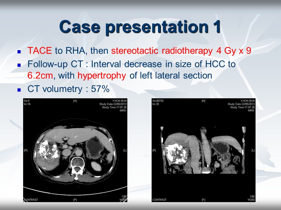 Case presentation 1 BeforeAfter