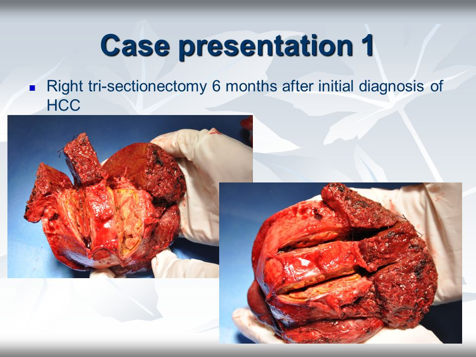Right tri-sectionectomy 6 months after initial diagnosis of HCC