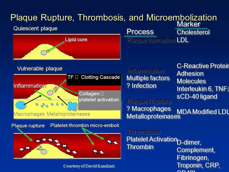 Plaque Rupture, Thrombosis, and Microembolization Quiescent plaque Platelet-thrombin micro-emboli Plaque rupture Process Plaque formation Inflammation