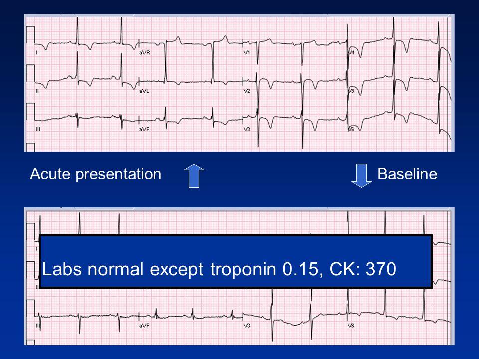 Baseline Acute presentation Labs normal except troponin 0.15, CK: 370