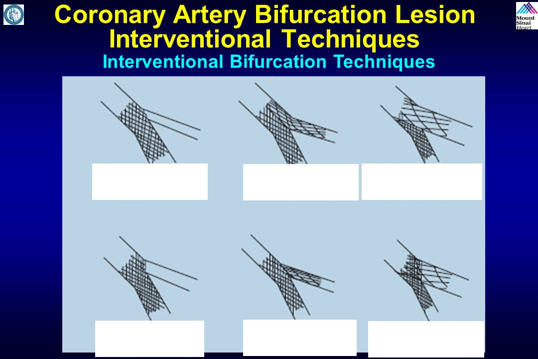 Coronary Artery Bifurcation Lesion Interventional Techniques Interventional Bifurcation Techniques One Stent Technique (OST) OST with SBR Dilatation (