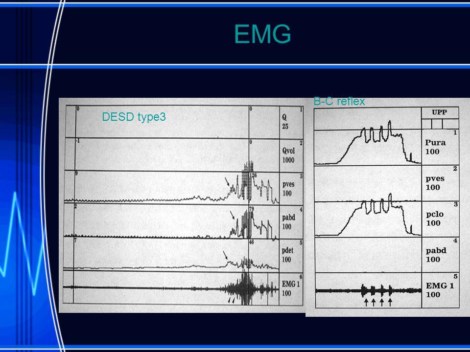 EMG DESD type3 B-C reflex