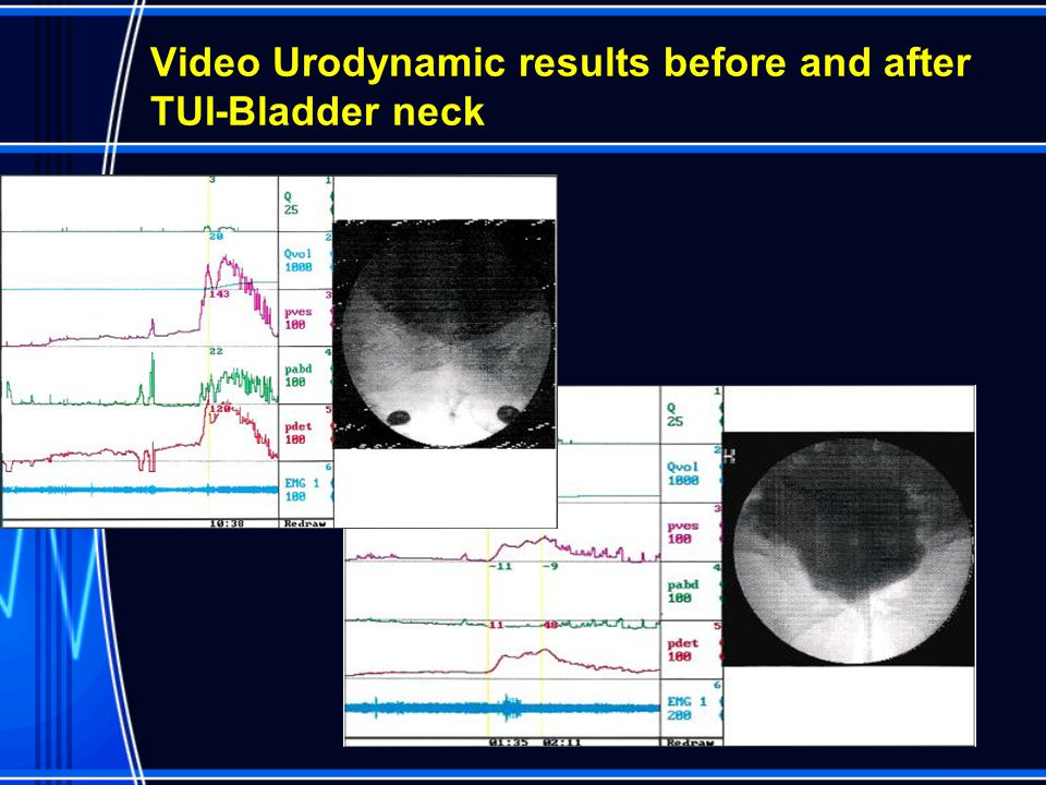 Video Urodynamic results before and after TUI-Bladder neck