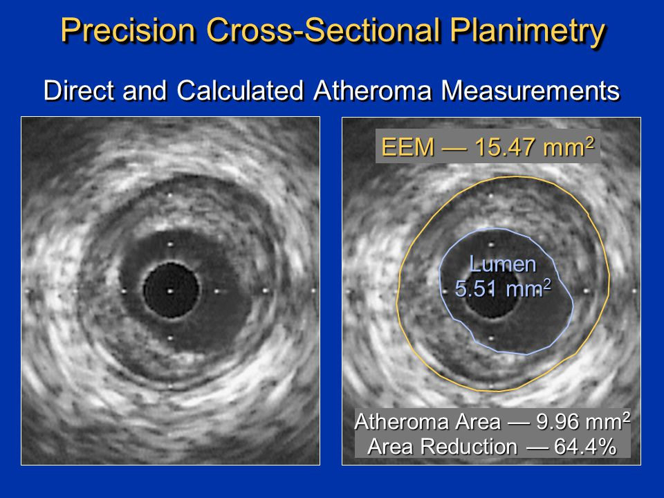 Precision Cross-Sectional Planimetry Lumen 5.51 mm 2 Direct and Calculated Atheroma Measurements EEM — 15.47 mm 2 Atheroma Area — 9.96 mm 2 Area Reduction — 64.4%