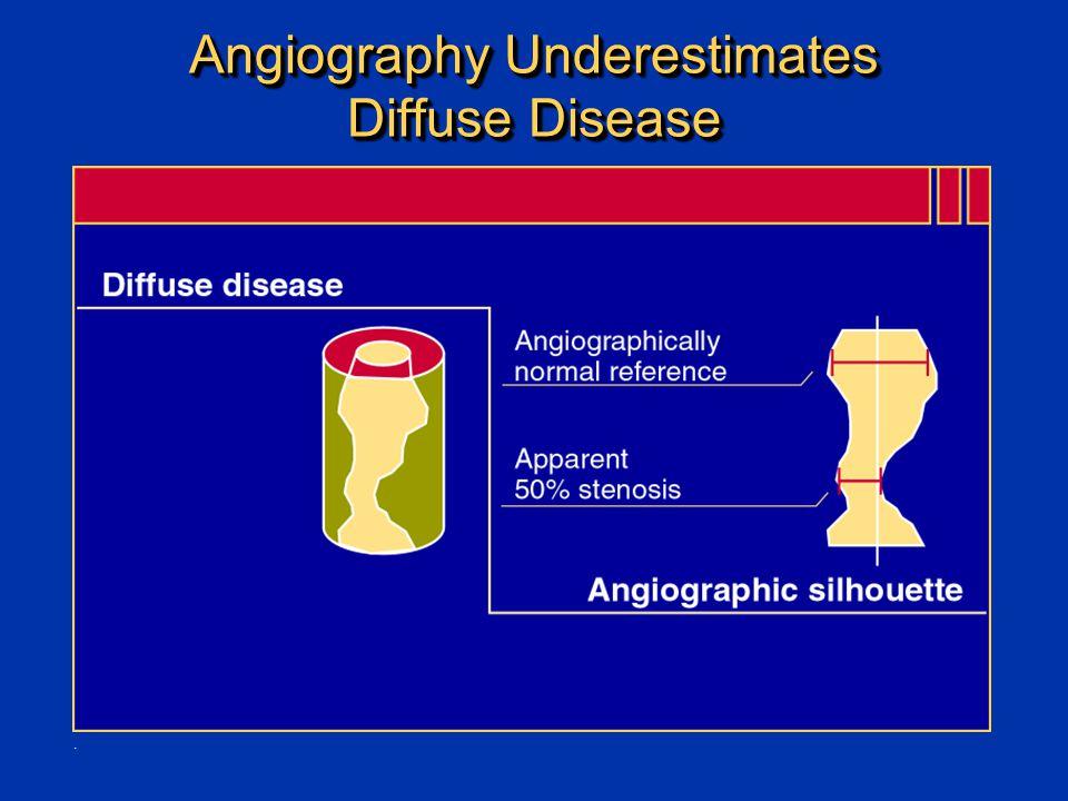 Angiography Underestimates Diffuse Disease.