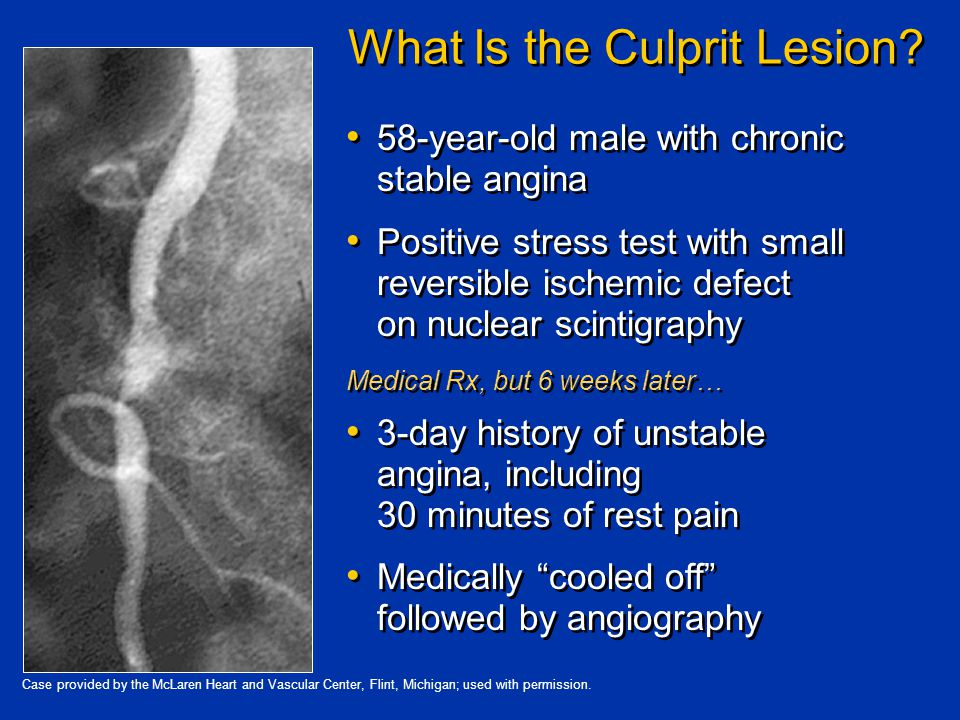 What Is the Culprit Lesion.
