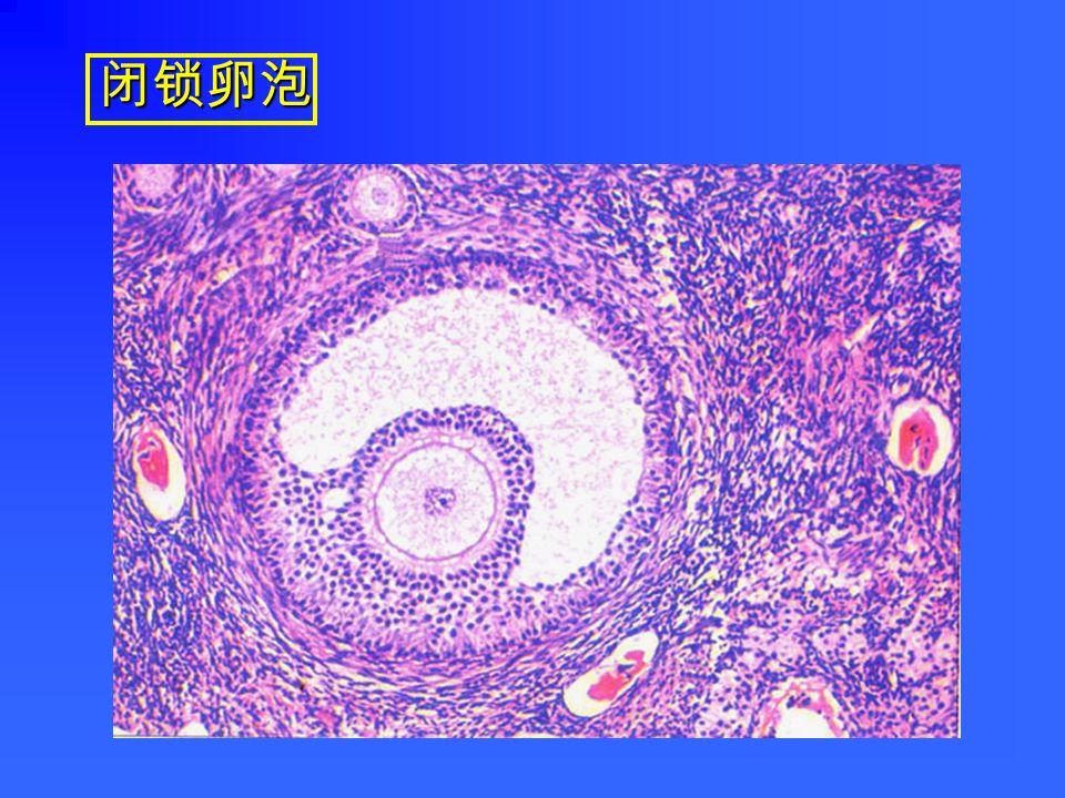 白体(人卵巢)