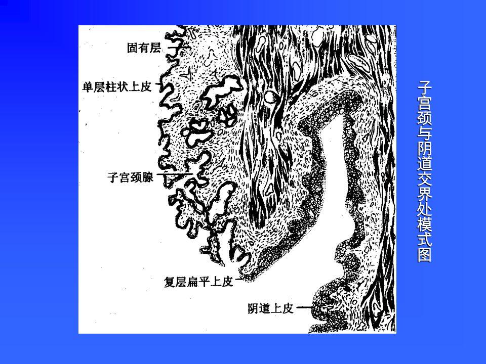外膜:纤维膜 外膜:纤维膜 肌层:平滑肌和富含弹性纤维的结缔组织 肌层:平滑肌和富含弹性纤维的结缔组织 粘膜:由上皮和固有层构成 粘膜:由上皮和固有层构成 上皮:单层柱状,由分泌细胞、纤毛细胞和储 上皮:单层柱状,由分泌细胞、纤毛细胞和储 备细胞组成。分泌细胞:多,雌激素促进分泌,分 泌物为清亮透明的碱性粘液,利于精子通过;孕 激素作用下,细胞分泌量减少,分泌物粘稠,起 屏障作用。 备细胞组成。分泌细胞:多,雌激素促进分泌,分 泌物为清亮透明的碱性粘液,利于精子通过;孕 激素作用下,细胞分泌量减少,分泌物粘稠,起 屏障作用。 子宫颈