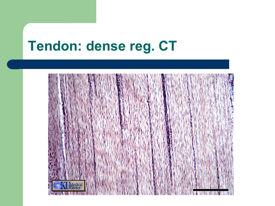 Tendon: dense reg. CT