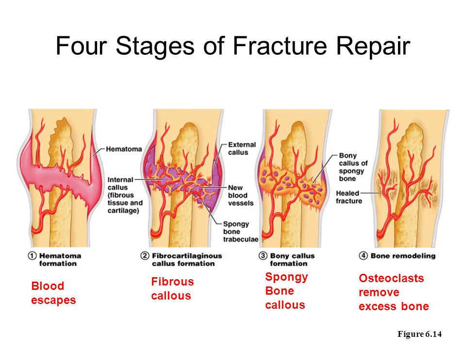 Stages of Healing a Fracture Figure 6.14 Blood escapes Fibrous callous Spongy Bone callous Osteoclasts remove excess bone Four Stages of Fracture Repa