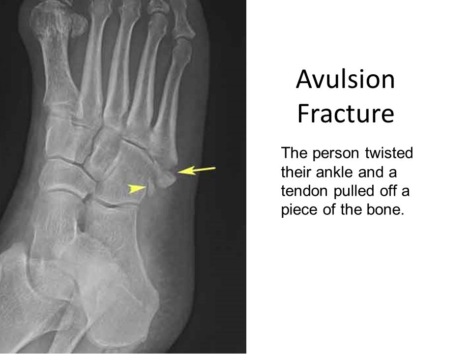 Avulsion Fracture The person twisted their ankle and a tendon pulled off a piece of the bone.
