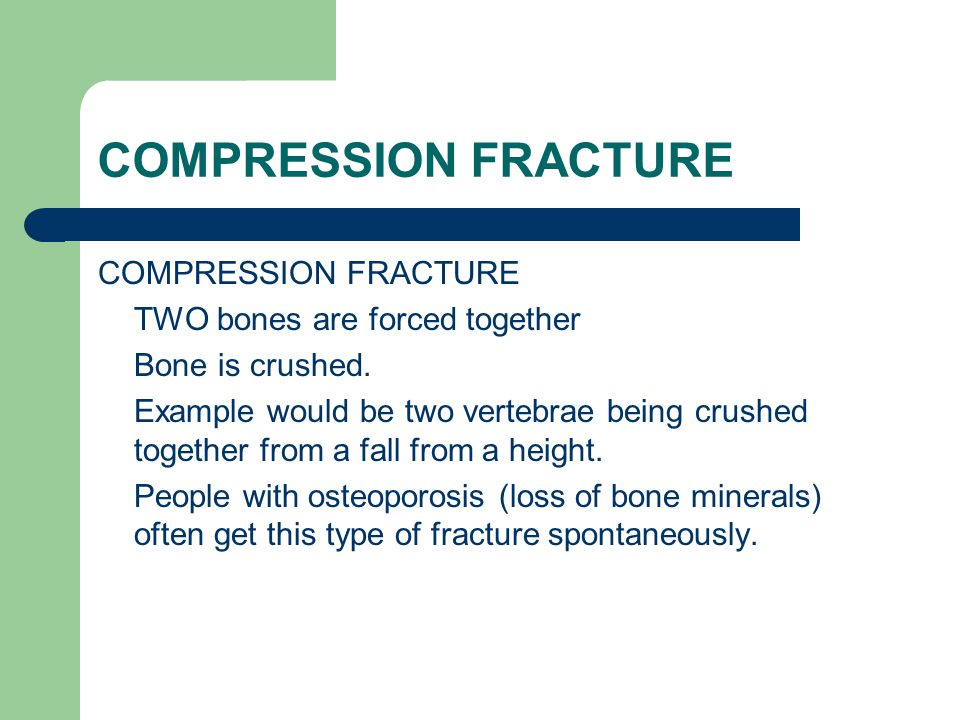 COMPRESSION FRACTURE TWO bones are forced together Bone is crushed. Example would be two vertebrae being crushed together from a fall from a height. P