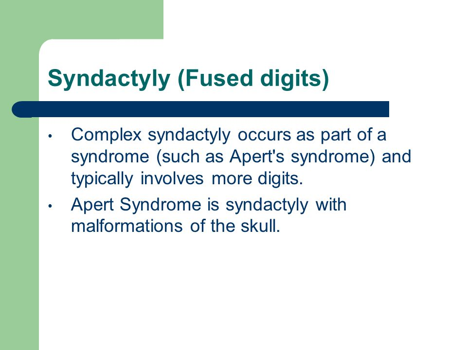 Complex syndactyly occurs as part of a syndrome (such as Apert's syndrome) and typically involves more digits. Apert Syndrome is syndactyly with malfo