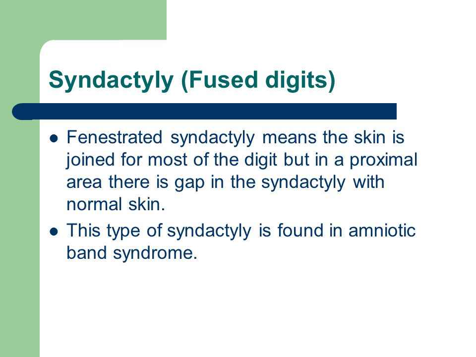 Syndactyly (Fused digits) Fenestrated syndactyly means the skin is joined for most of the digit but in a proximal area there is gap in the syndactyly