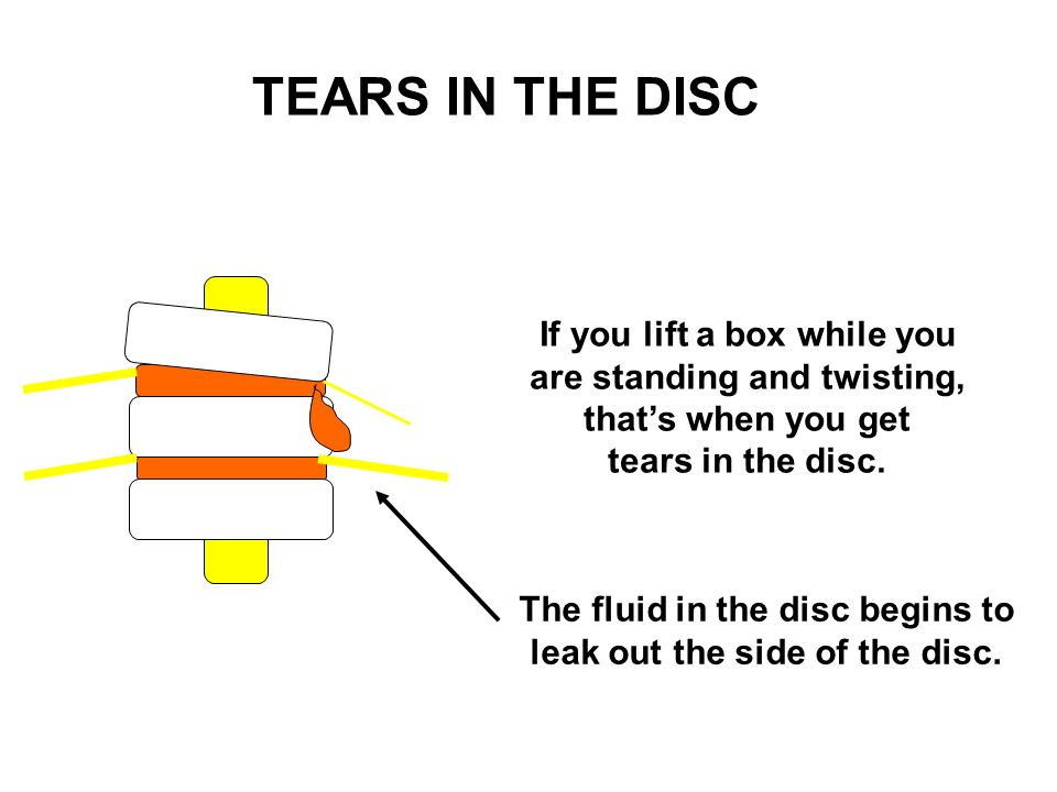 If you lift a box while you are standing and twisting, that's when you get tears in the disc. TEARS IN THE DISC The fluid in the disc begins to leak o